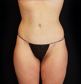 liposuktion brust mann