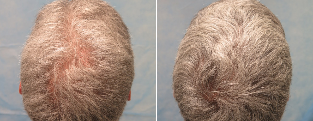 prp patient cmr beforeafter